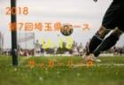 アフター【サッカー用語解説集】